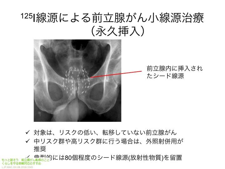 前立腺 が ん 骨 転移